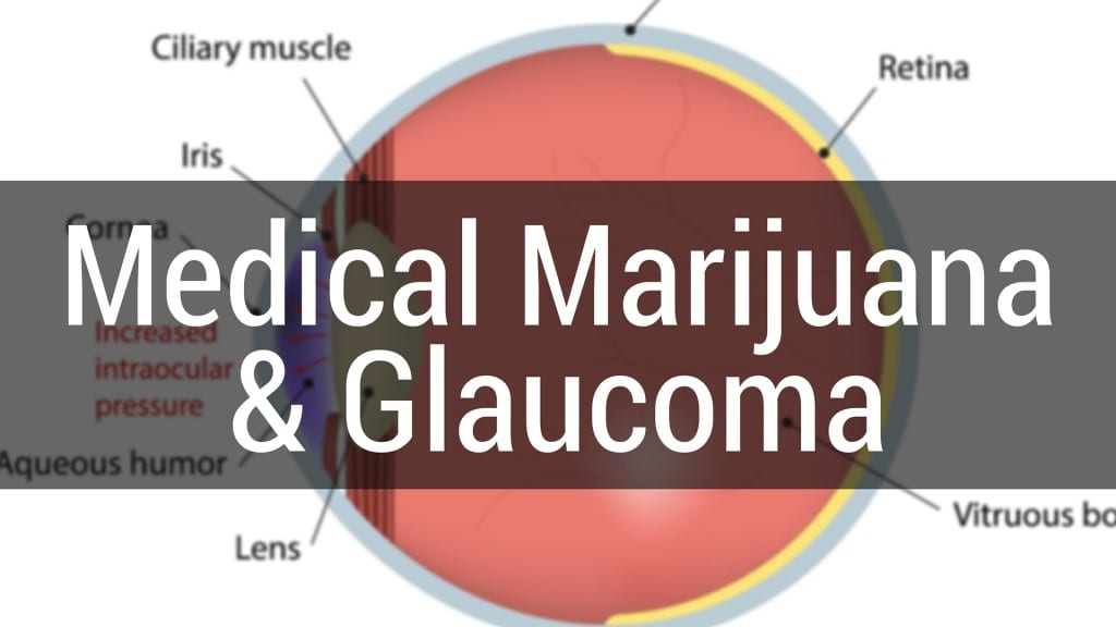 Marijuana can be Used to Treat Glaucoma