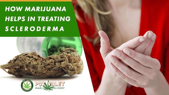 How Marijuana Treats Scleroderma