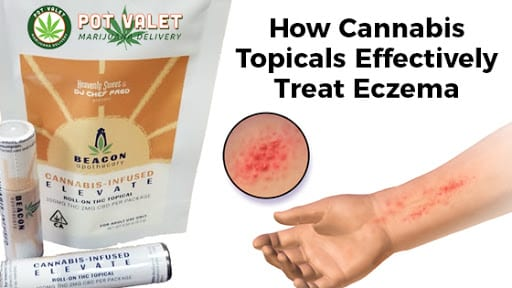 How Cannabis Topicals Effectively Treat Eczema